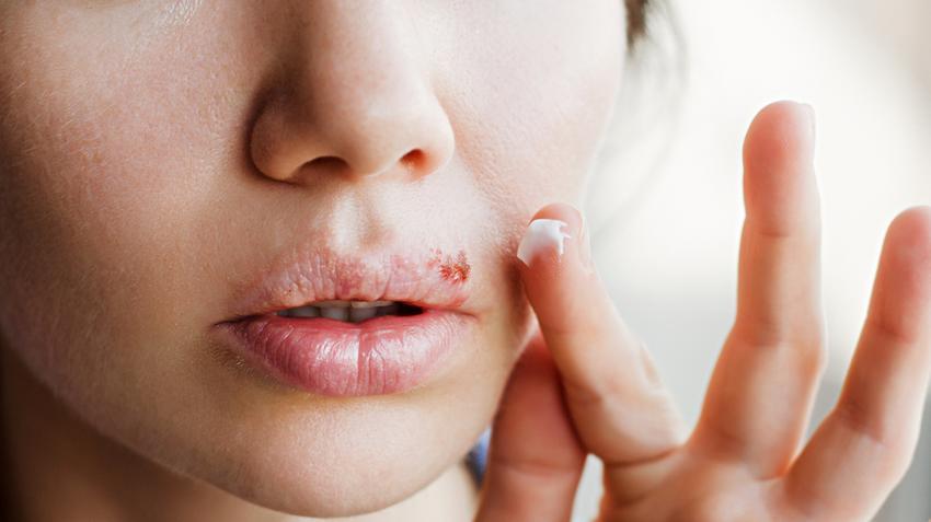 Szokatlan elváltozás az ajkakon - íme, az okok!