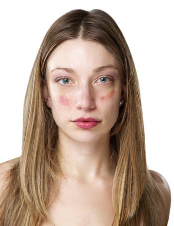 vörös folt hólyagokkal az arcon pikkelysömör kezelése kartalin