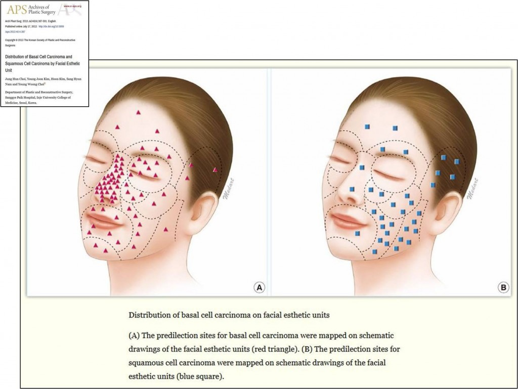 az arcbőr jóindulatú duzzanata vörös foltok