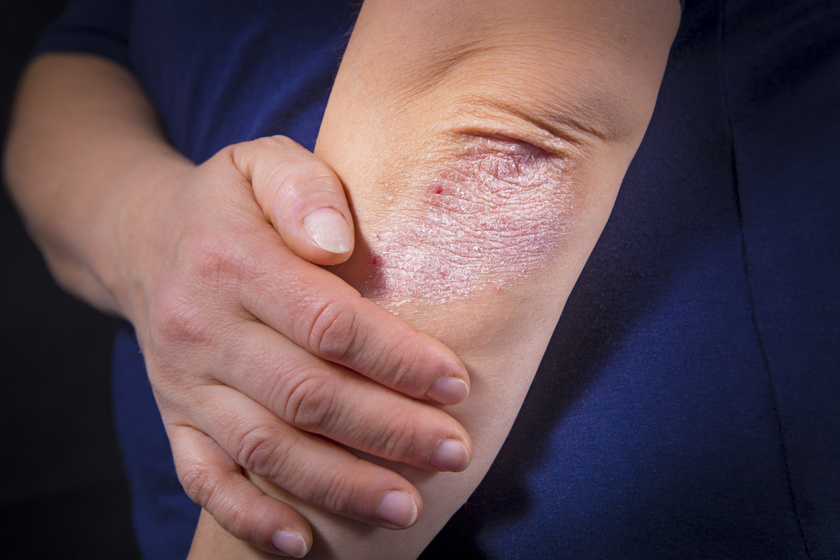 hogyan és hogyan lehet enyhíteni a pikkelysömör súlyosbodását piros folt a hátán viszket