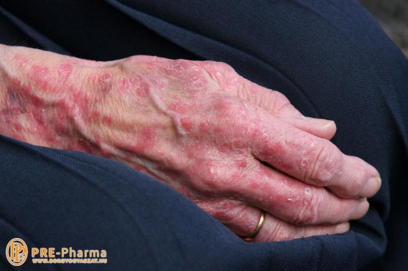 dermatologist pikkelysömör kezelése