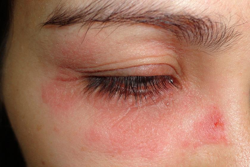a szem alatt vörös foltok fotó hogyan kell kezelni
