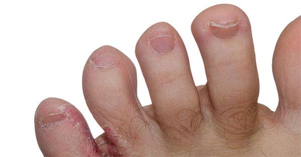 vörös foltok hámlanak le az ujjak között