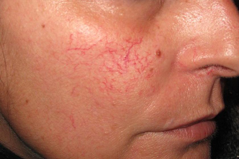 kenőcs az arcra a vörös foltoktól