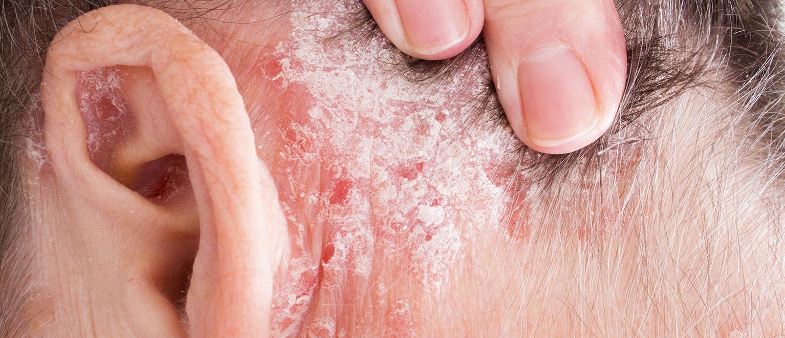 homeopátiás kenőcsök pikkelysömörhöz ultraibolya besugárzó pikkelysömör kezelésére