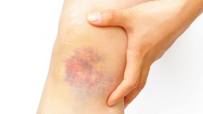 vörös folt jelent meg a lábán mint egy zúzódás