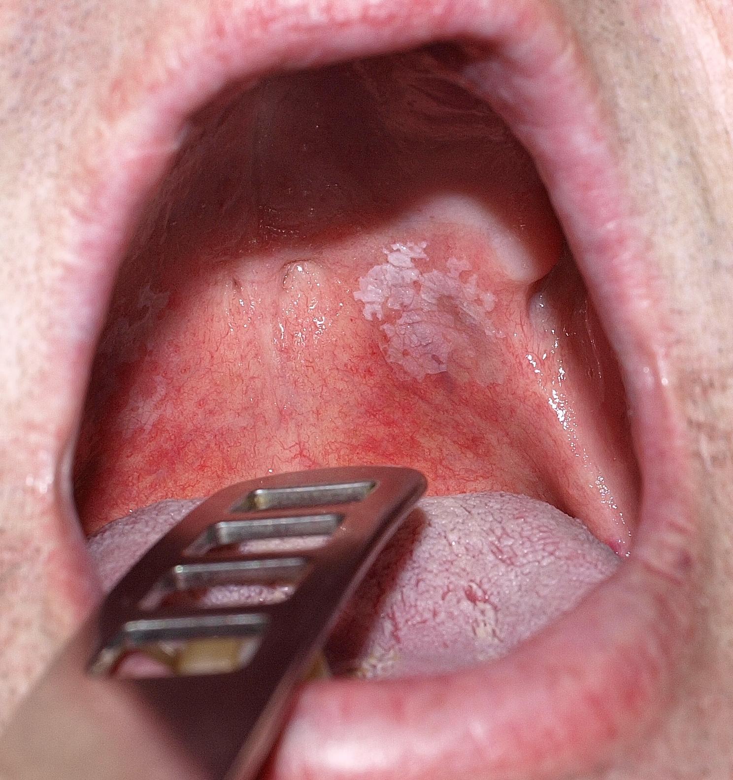 vörös foltok jelentek meg a szájban mint kezelni)