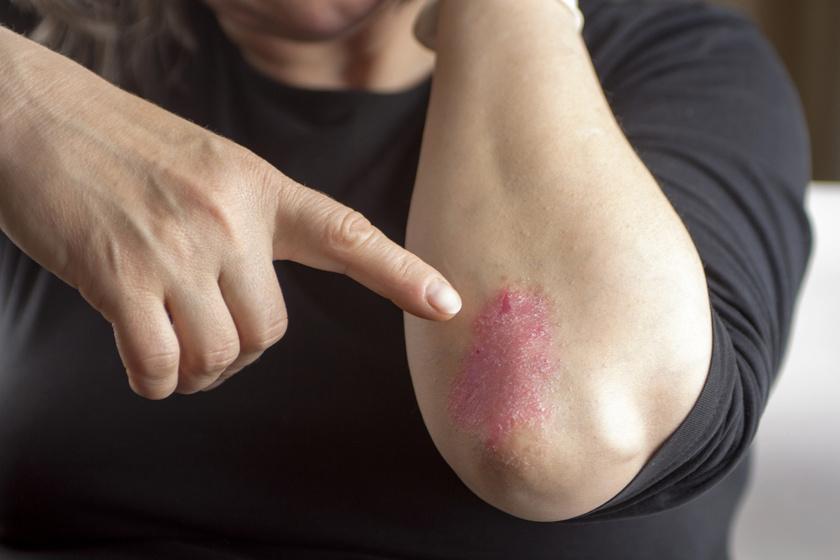 pikkelysömör kezelése Amerikában a bőrön egy piros peremű folt fáj