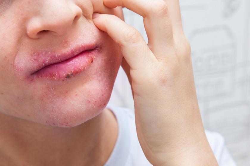 Gygynvnyek pikkelysömör dermatitis. 2. Kaszkarabokor