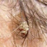 Fejkosz tünetei és kezelése - HáziPatika