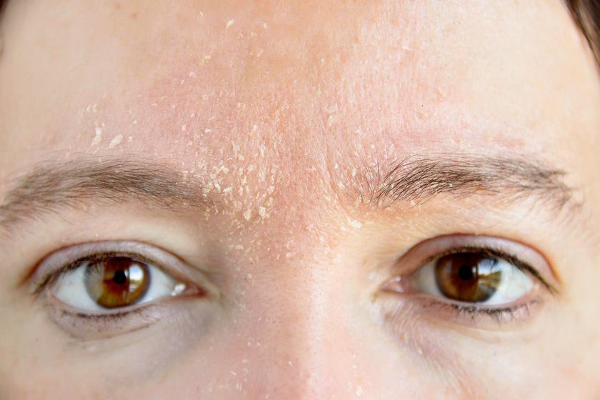 miért hámlik le az arcbőr és a vörös foltok pikkelysömör kezelésére tippek