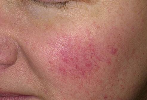 készítmények az arc vörös foltjaihoz