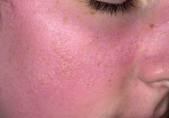 Arcon vörös folt hólyagokkal, Egy kellemetlen bőrbetegség természetes terápiája