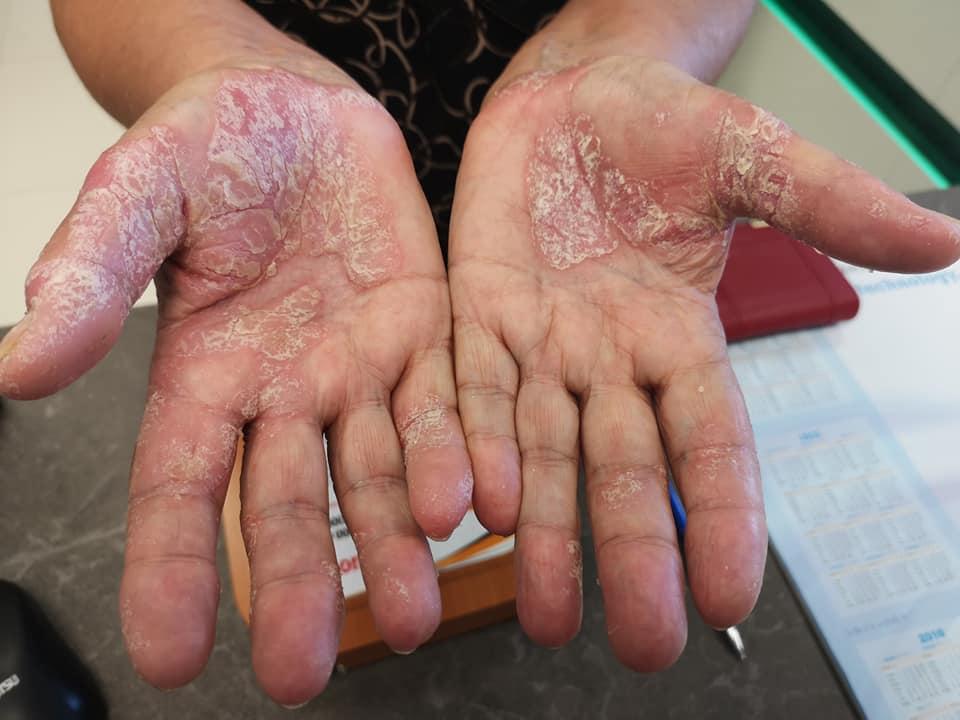 a kezek bőrén a vörös foltok pikkelyesek és viszketőek vörös folt a nők hasán