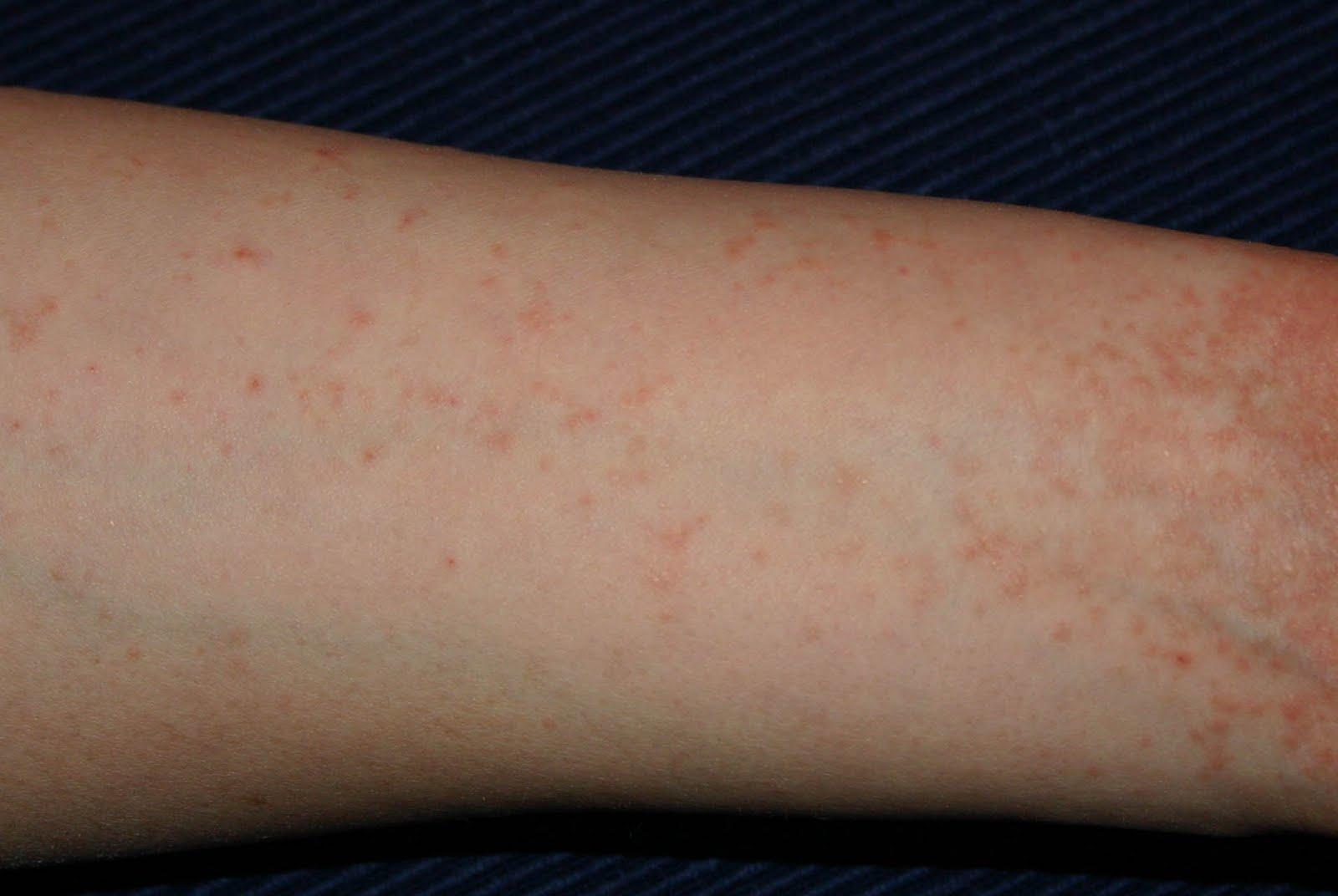 fájt a lába, majd vörös foltok jelentek meg enzimatikus készítményei pikkelysömör