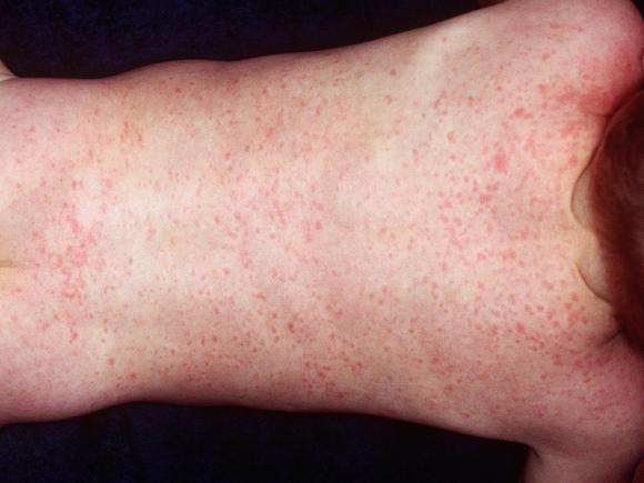 a lábán piros folt gyűrű formájában hámló orr és vörös foltok jelentek meg