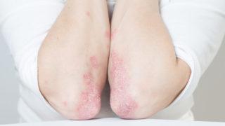 a pikkelysömör kezelésének feltételei a kórházban hód zsír pikkelysömör kezelése