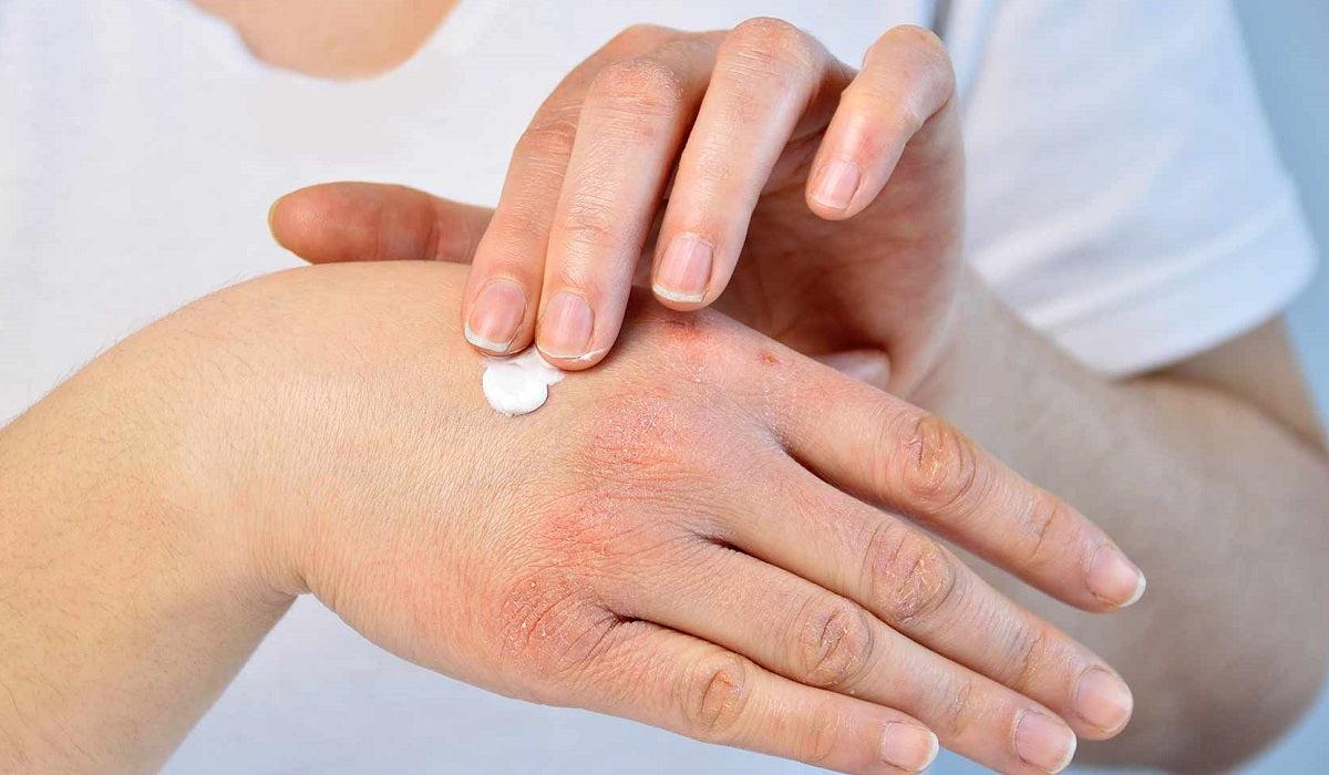 szteroid krém pikkelysömörhöz piros foltok a kezeken kerekek