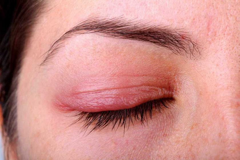 vörös foltok húzódnak le a szem alatt szőrös pikkelysömör és gyógyszerek