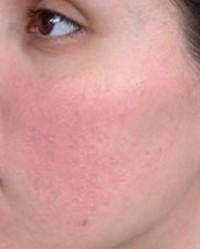 bőrbetegség az arcon vörös folt piros foltok az arcon edzés után