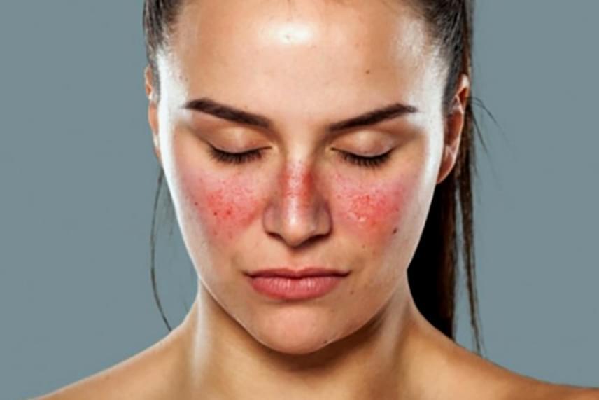 bőrbetegség az arcon vörös folt szülés utáni pikkelysömör kezelése
