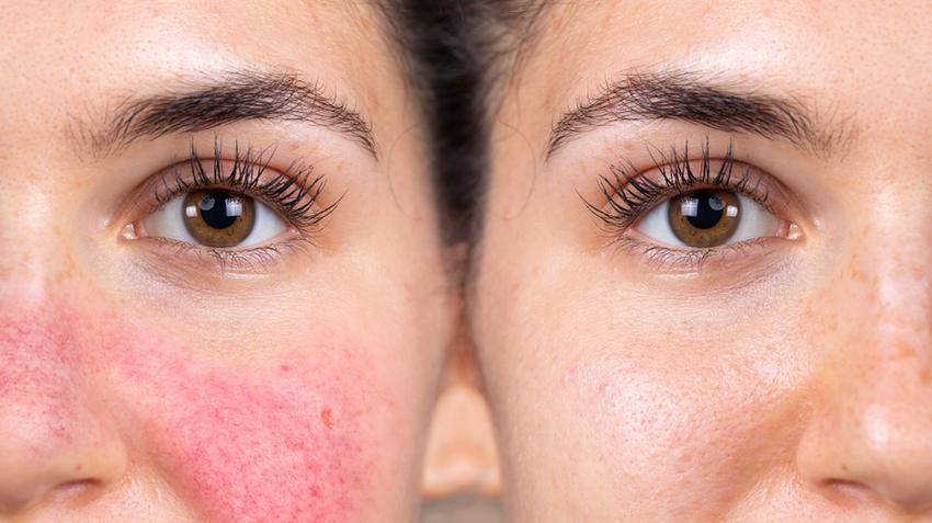 Vaszkuláris vörös folt az arcon. Mit lehet tenni?
