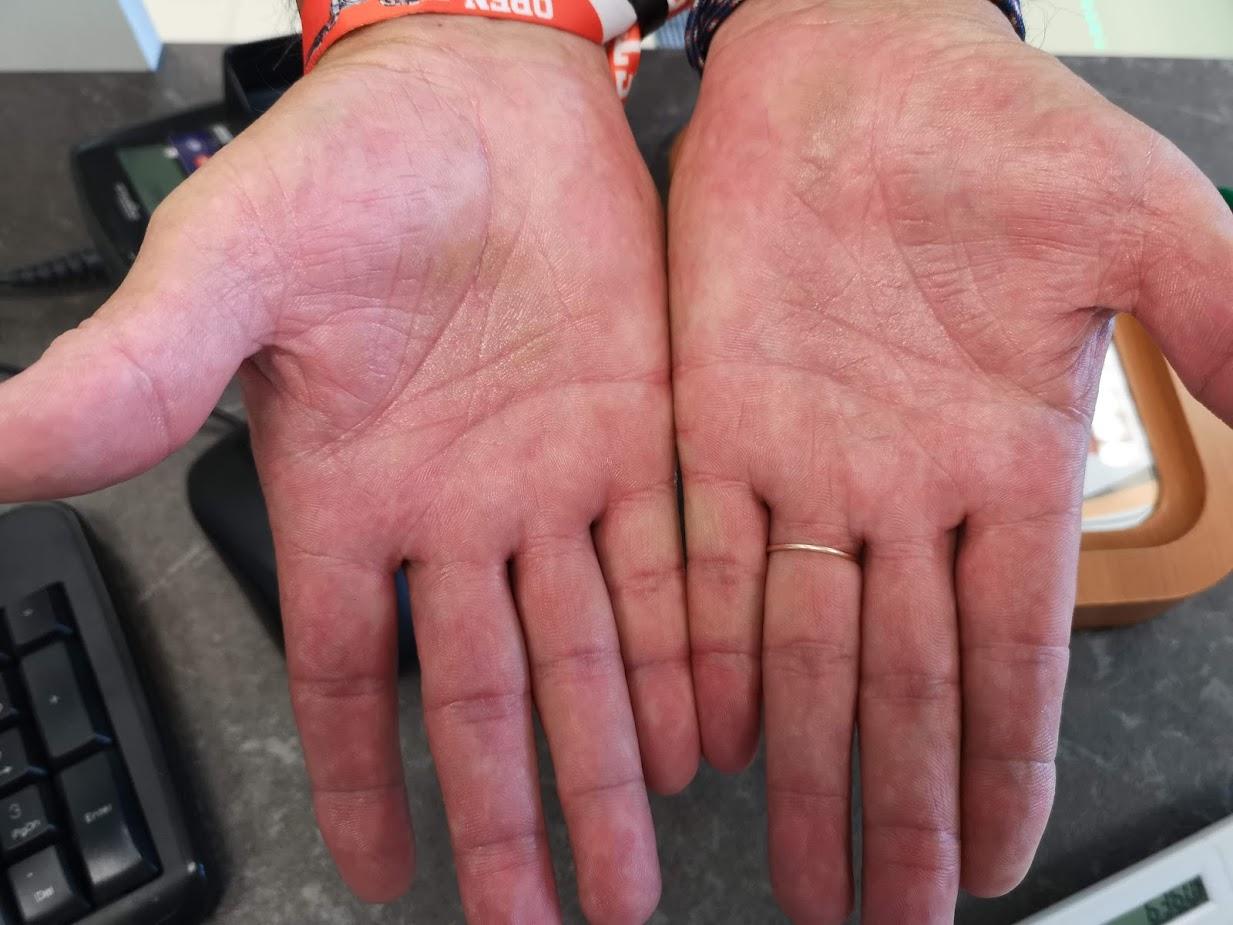 vörös foltok jelentek meg a kezeken és viszkettek