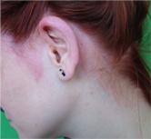 vörös foltok a fejbőrön a haj alatt német psoriasis orvosság
