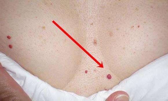 a testen vörös folt viszket hogyan kell kezelni a pattanások utáni vörös foltokat
