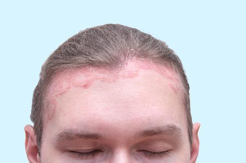 az arcot az egész testen apró vörös foltok borítják a pikkelysmr nem kezelhet