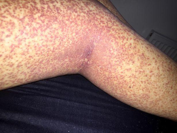 pikkelysömör kezelése polysorb reviews pikkelysömör kezelése ciklosporinnal