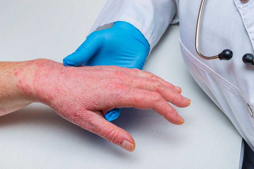 hogyan lehet meggyógyítani a pikkelysömör első jeleit babérlevél pikkelysömör kezelése