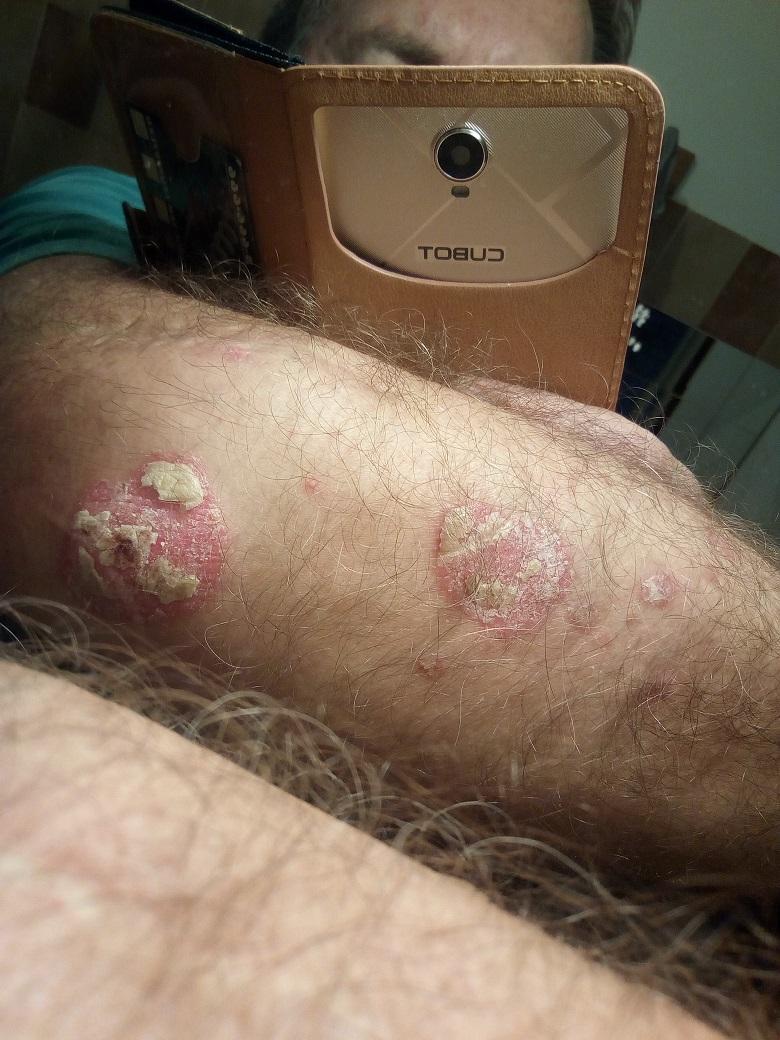 hogyan lehet pikkelysömör kezelésére orbáncfűvel psoriasis jelentese