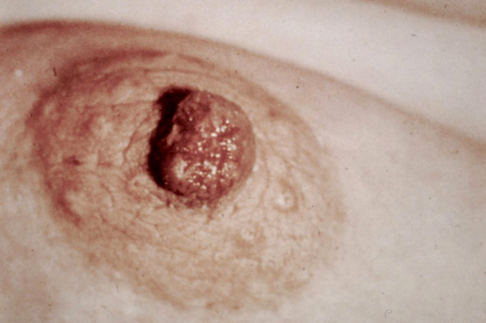 mellbimbó pikkelysömör kezelése