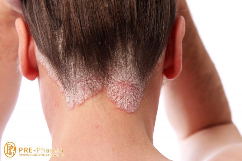 pikkelysömör kezelése cédrusolajjal vörös foltok jelentek meg a nyakon, hámlás és viszketés
