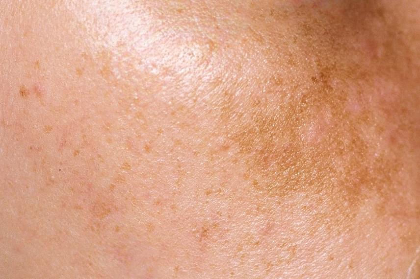 az arcbőrről lehámozva vörös folt maradt scalp psoriasis treatment natural