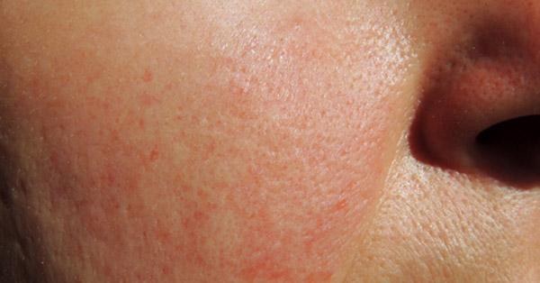 vörös foltok az arcon kezelést okoznak vörös foltok kezelése a kezeken